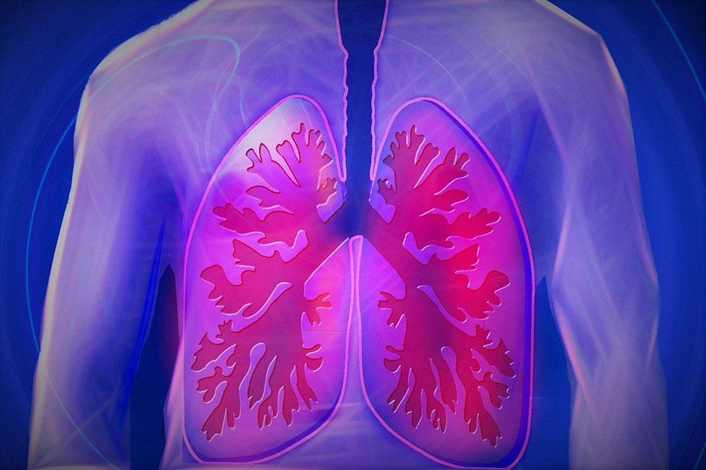 POChP - górna część ciała, choroba płuc
