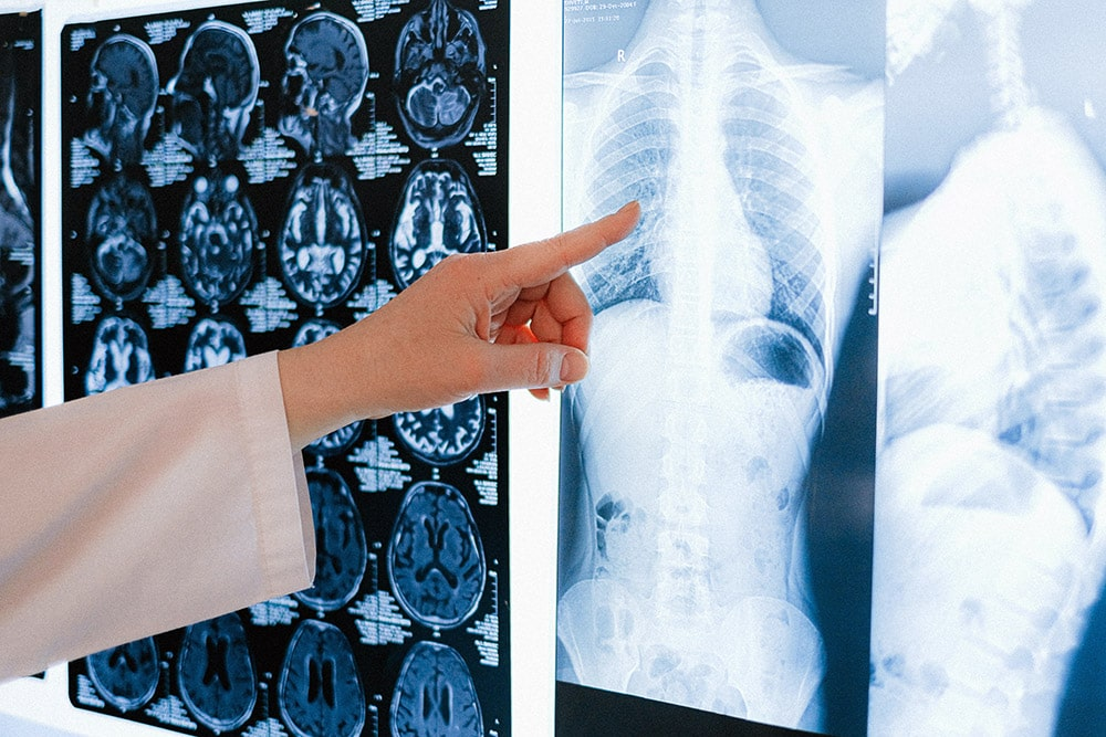 asthma: The doctor points to the lung x-ray hanging on the wall
