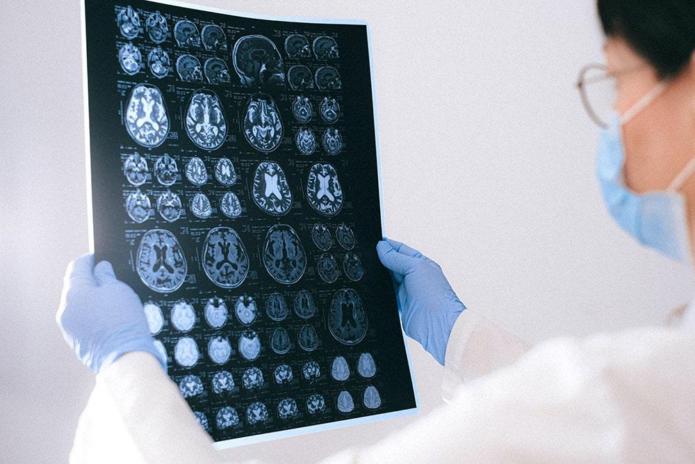 Zapalenie opon mózgowych: lekarz trzyma w rękach prześwietlenie mózgu