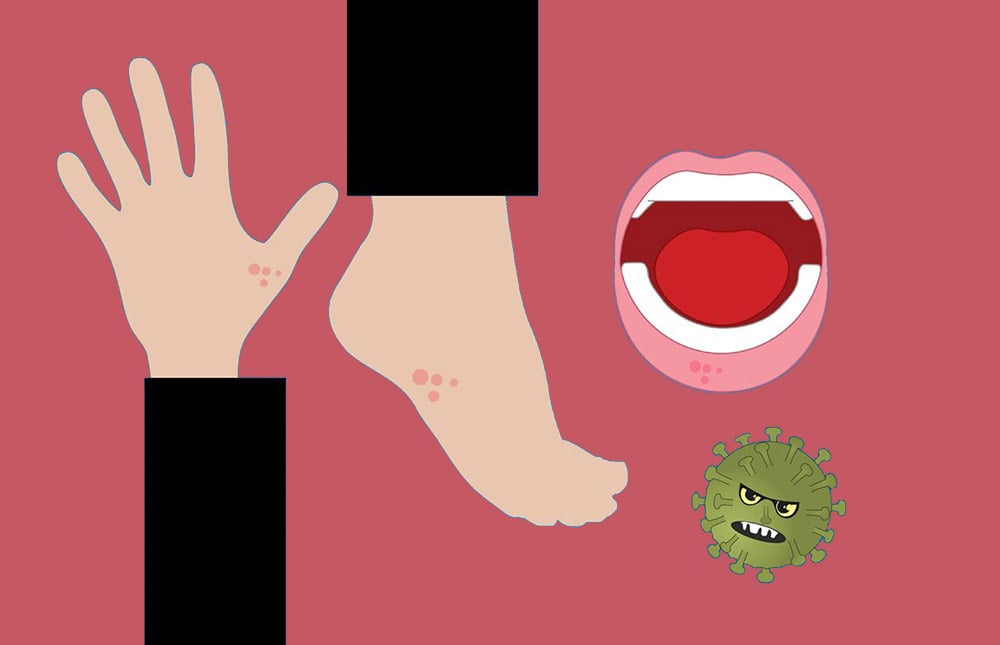 Świerzb: graficzny rysunek nogi, ręki, ust