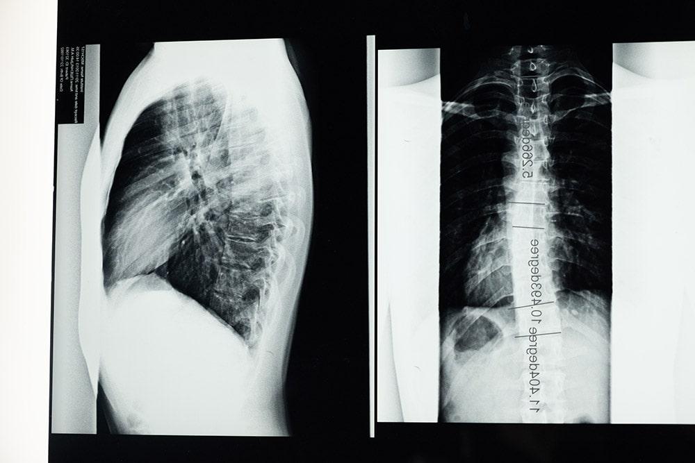 Skolioza rentgen