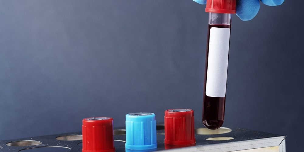 Hemofilia krew