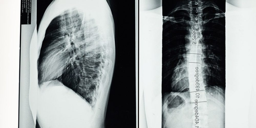 X-ray scoliosis